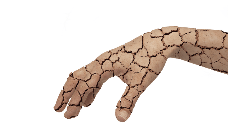 Dry skin concept